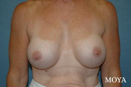 Breast Augmentation - Patient 1