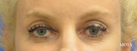 Eyelid Lift - Patient 5