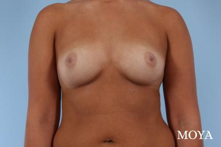 Breast Augmentation - Patient 2