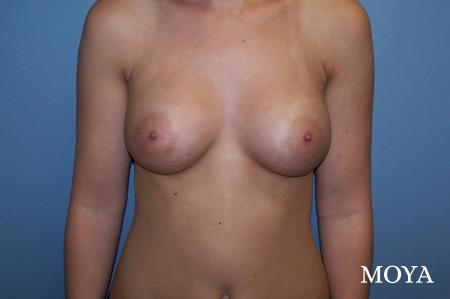Breast Augmentation - Patient 3
