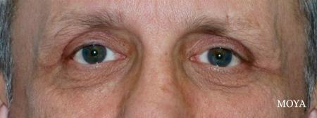 Eyelid Lift - Patient 6