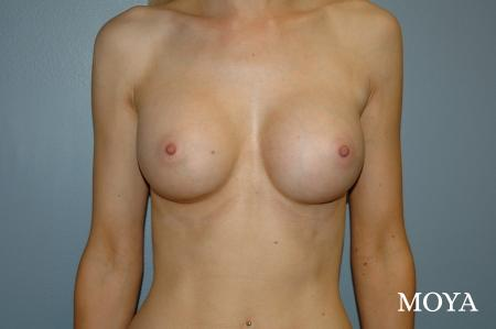 Breast Augmentation - Patient 4