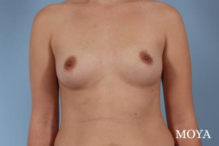 Breast Augmentation - Patient 5