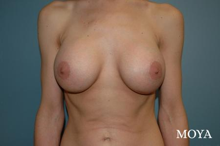 Breast Augmentation - Patient 6