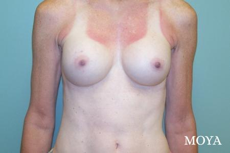 Breast Augmentation - Patient 7