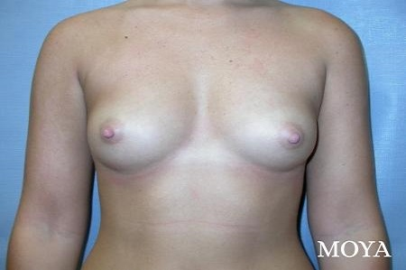 Breast Augmentation - Patient 8