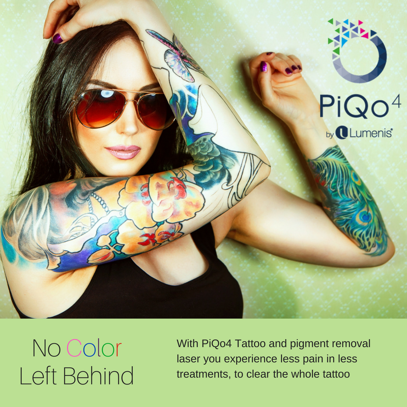 PiQo4 Laser Tattoo Removal | Lewisburg Plastic Surgery and Dermatology