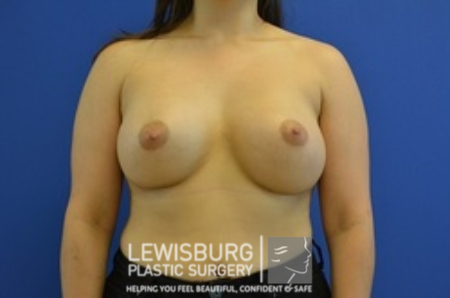 Breast Augmentation - Patient 9
