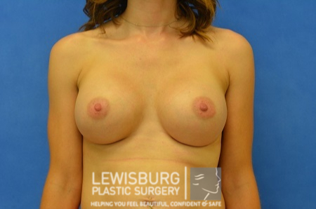 Breast Augmentation - Patient 10