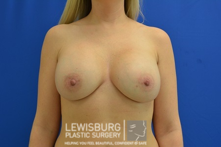 Breast Augmentation - Patient 12