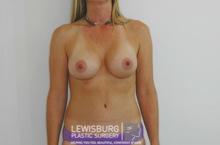 Breast Augmentation - Patient 11