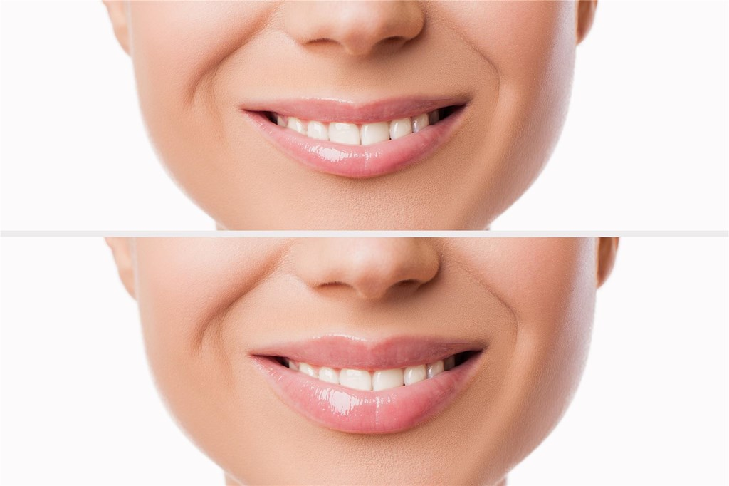 Lip Augmentation | Lewisburg Plastic Surgery and Dermatology